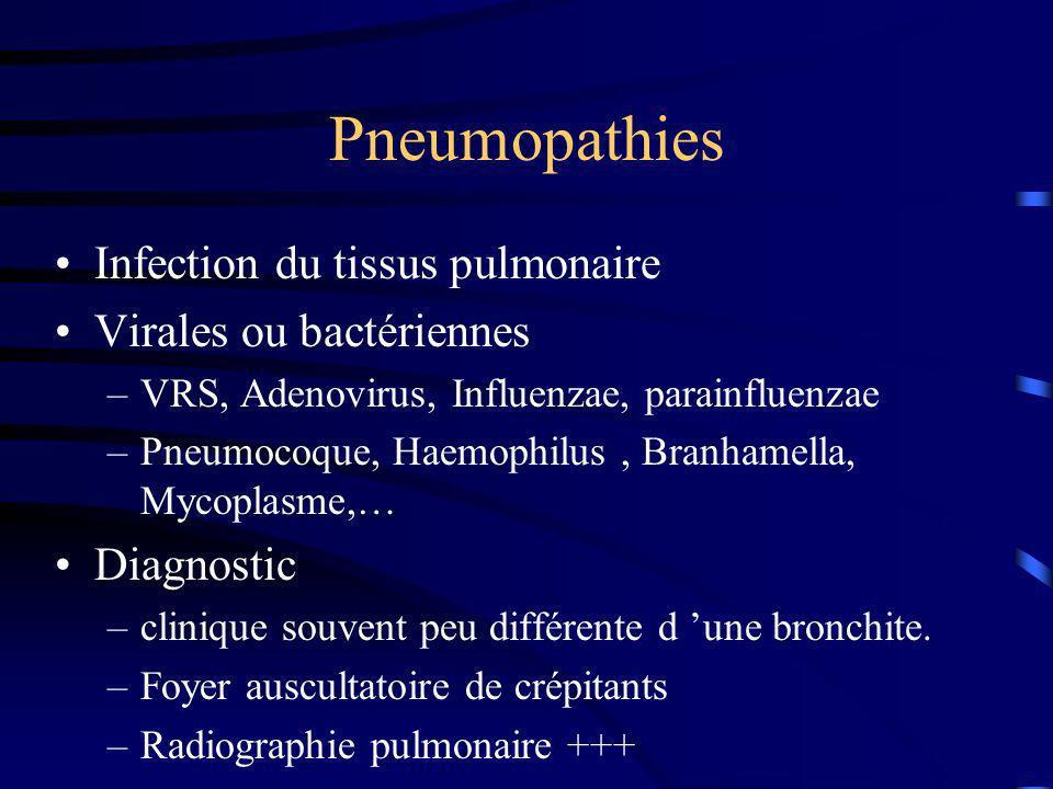 Pneumopathies Infection du tissus pulmonaire Virales ou bactériennes