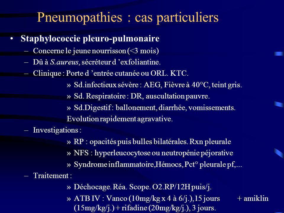Pneumopathies : cas particuliers