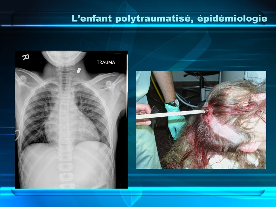 L'enfant polytraumatisé, épidémiologie
