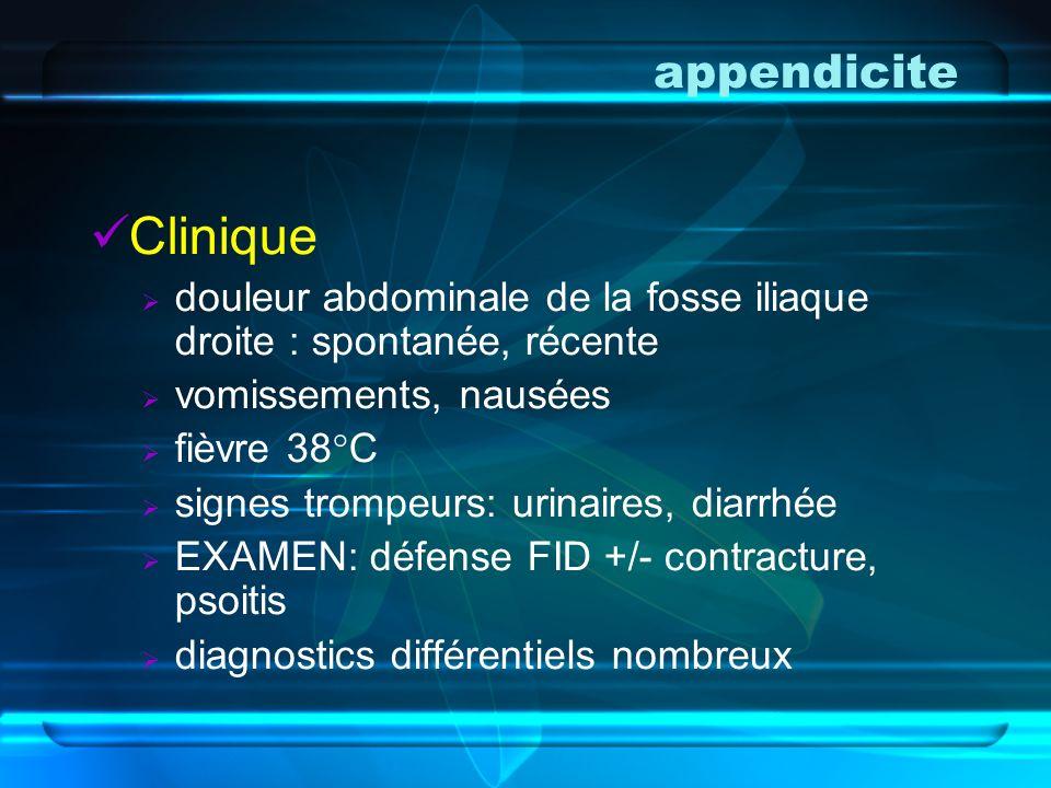 appendicite Clinique. douleur abdominale de la fosse iliaque droite : spontanée, récente. vomissements, nausées.