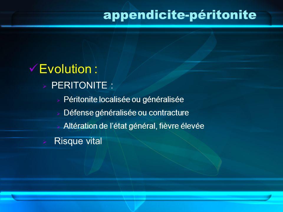 appendicite-péritonite