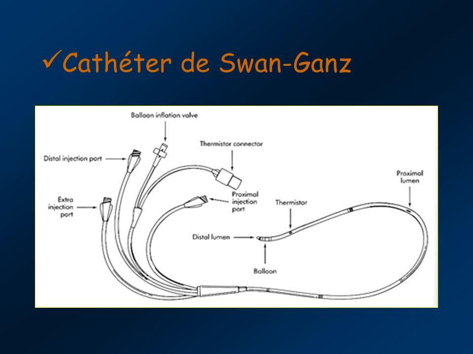 Cathéter de Swan-Ganz