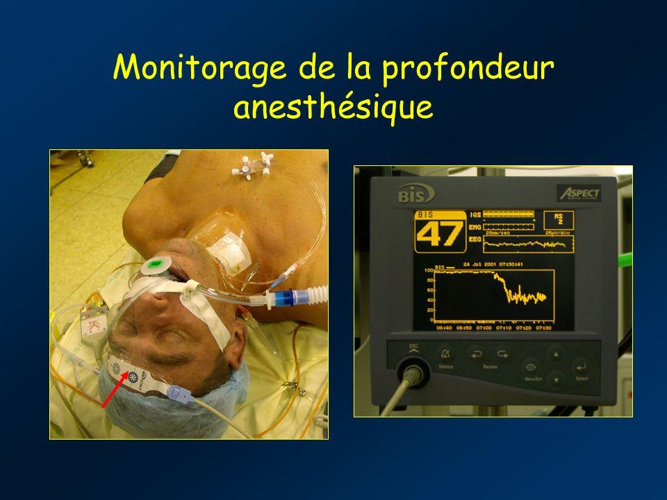 Monitorage de la profondeur anesthésique