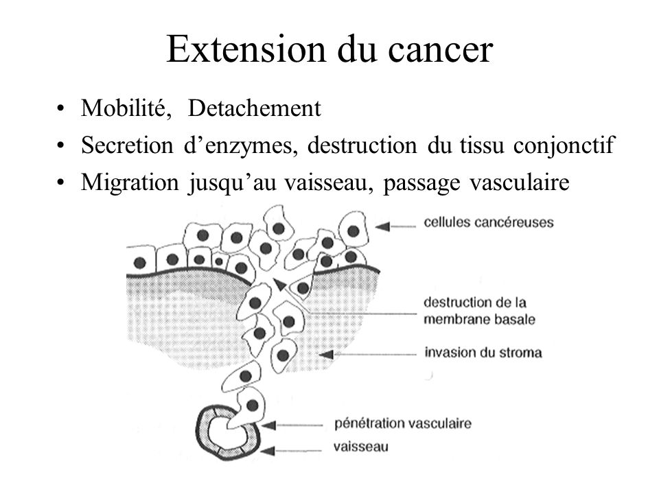 Extension du cancer Mobilité, Detachement
