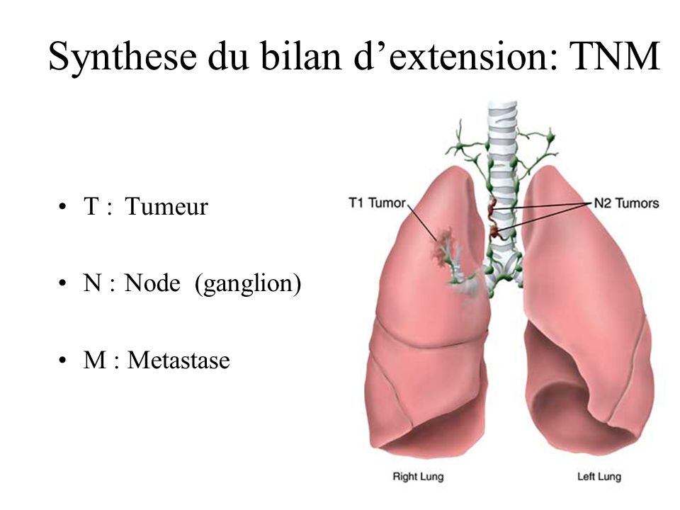 Synthese du bilan d'extension: TNM