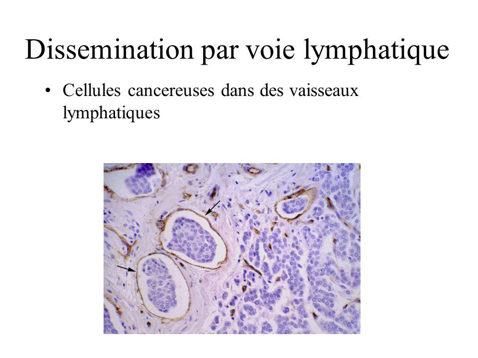 Dissemination par voie lymphatique