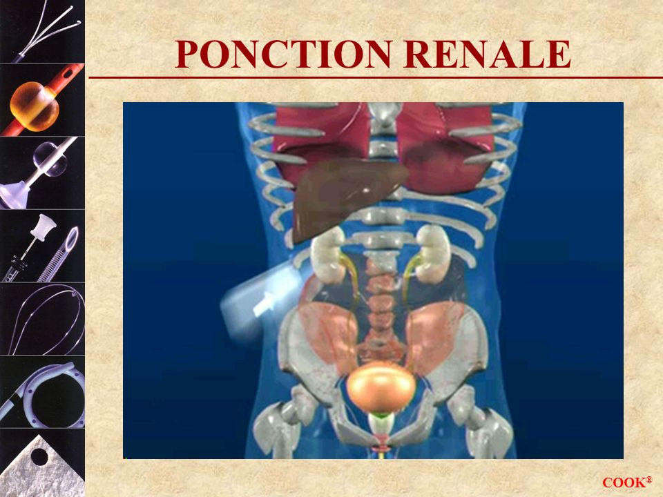 PONCTION RENALE COOK®