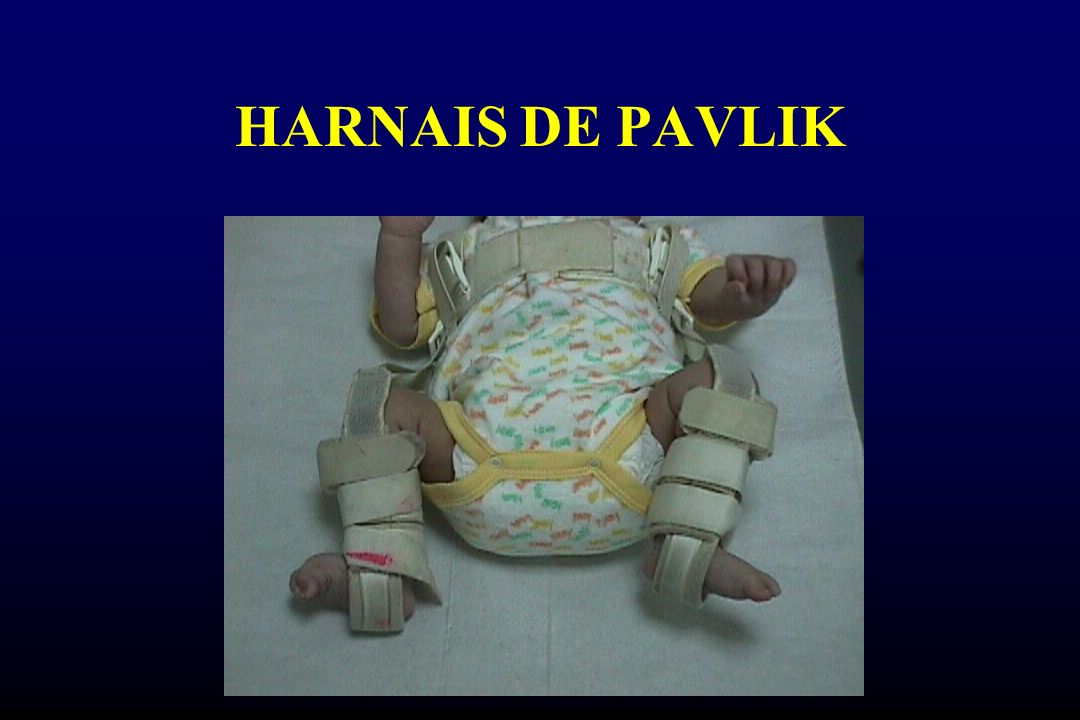 HARNAIS DE PAVLIK