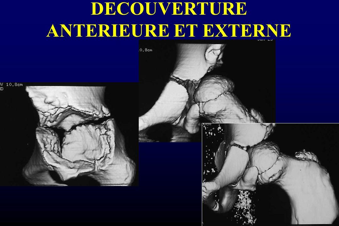 DECOUVERTURE ANTERIEURE ET EXTERNE