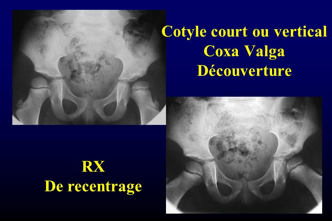 Cotyle court ou vertical Coxa Valga Découverture