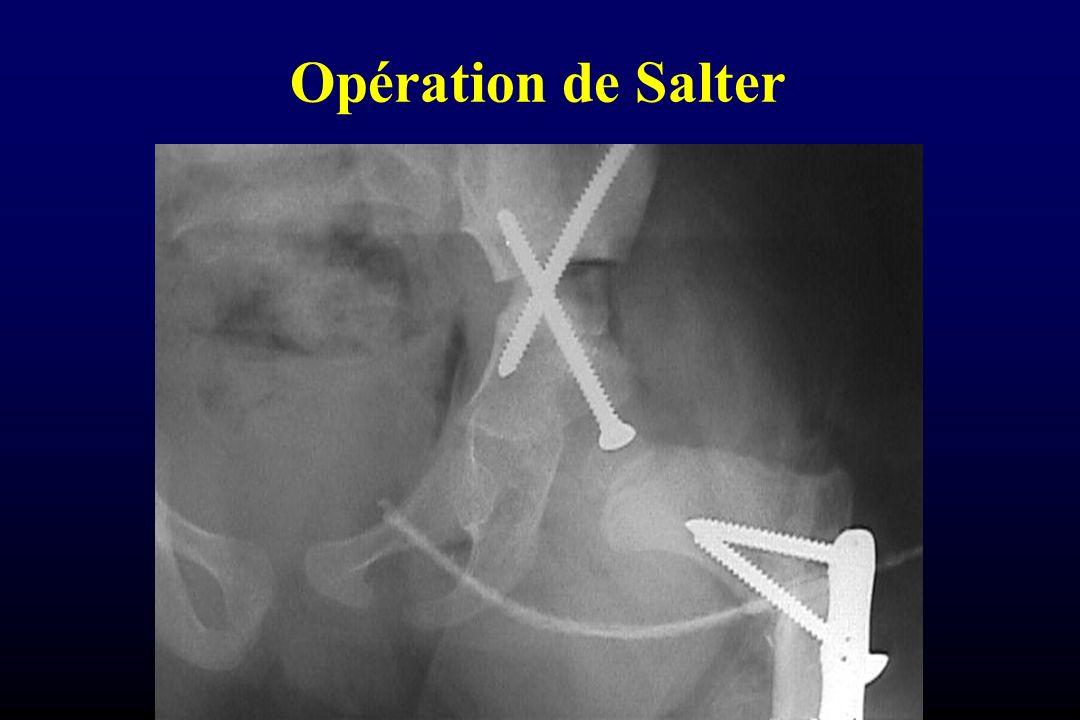 Opération de Salter