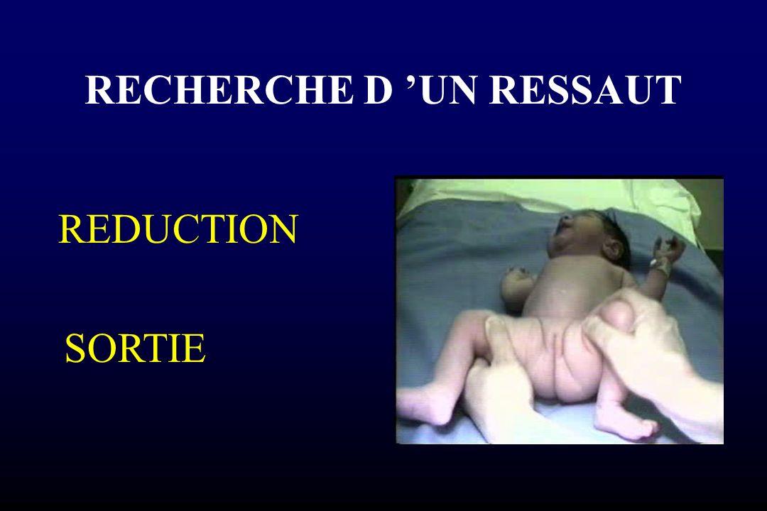 RECHERCHE D 'UN RESSAUT