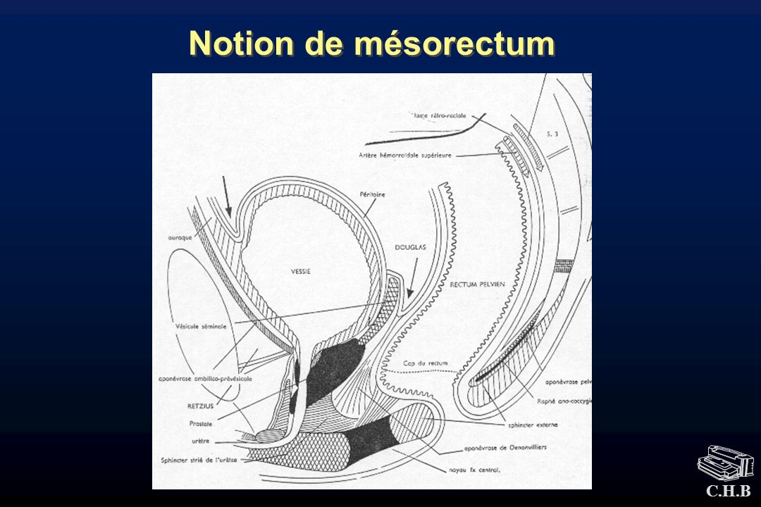 Notion de mésorectum