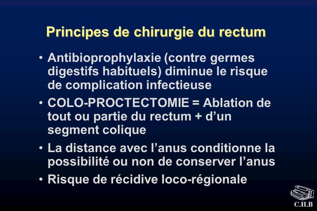 Principes de chirurgie du rectum