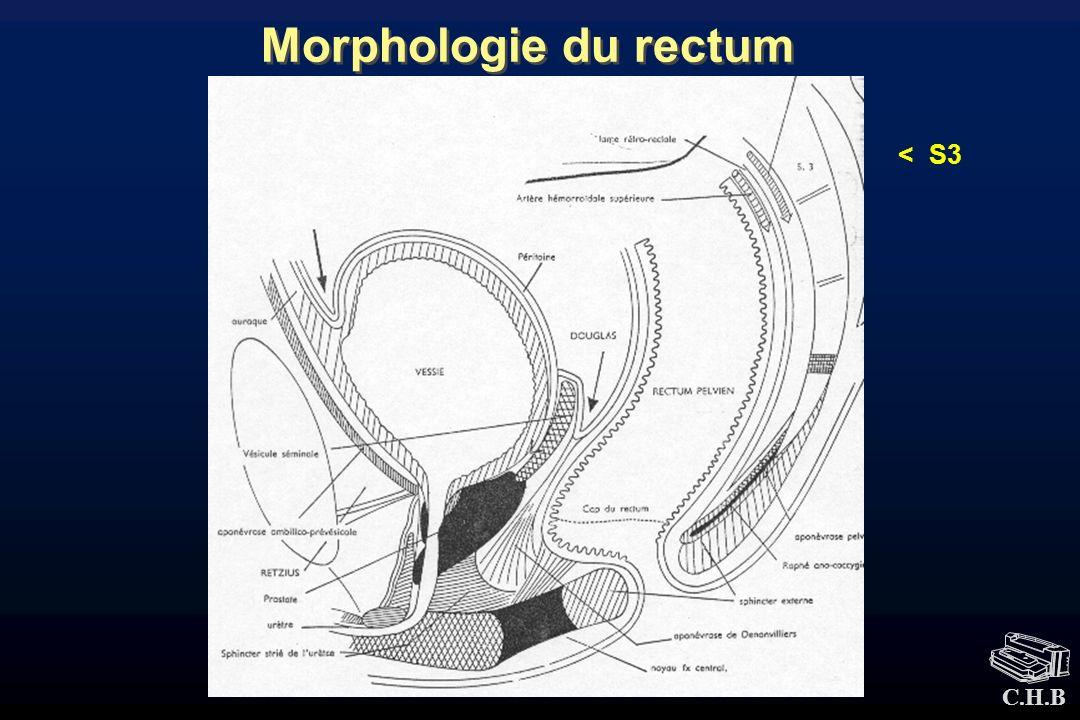 Morphologie du rectum < S3