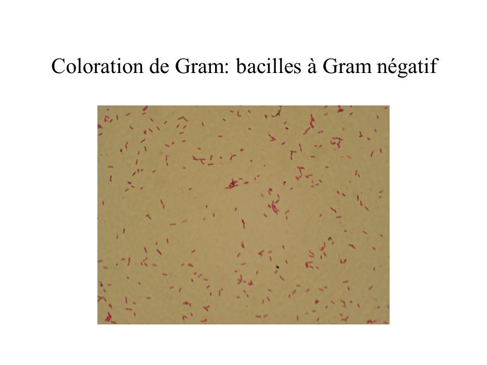 Coloration de Gram: bacilles à Gram négatif
