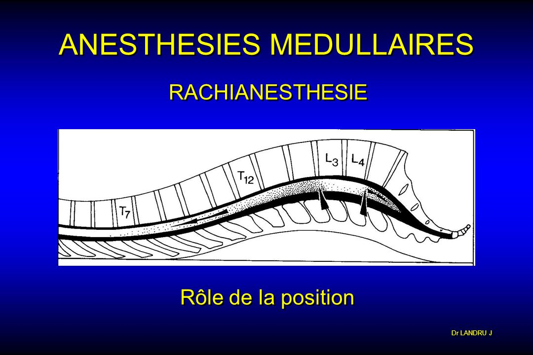ANESTHESIES MEDULLAIRES