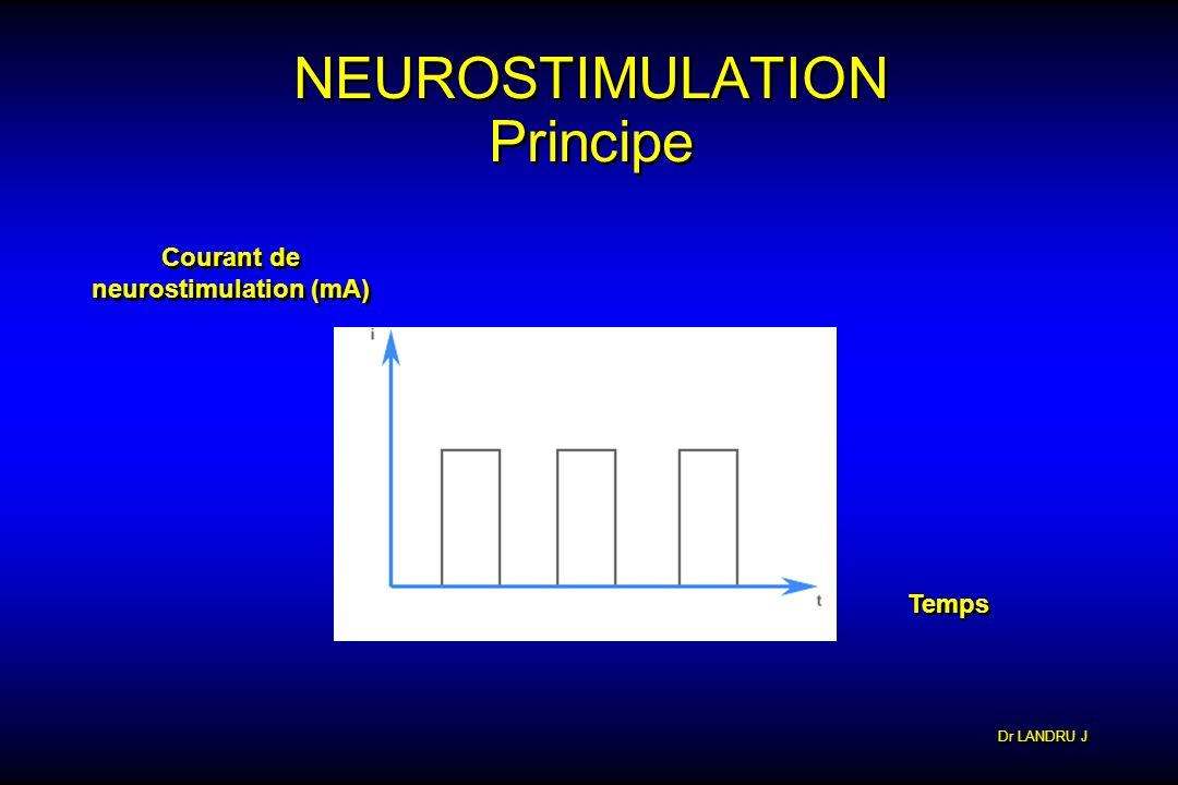 NEUROSTIMULATION Principe