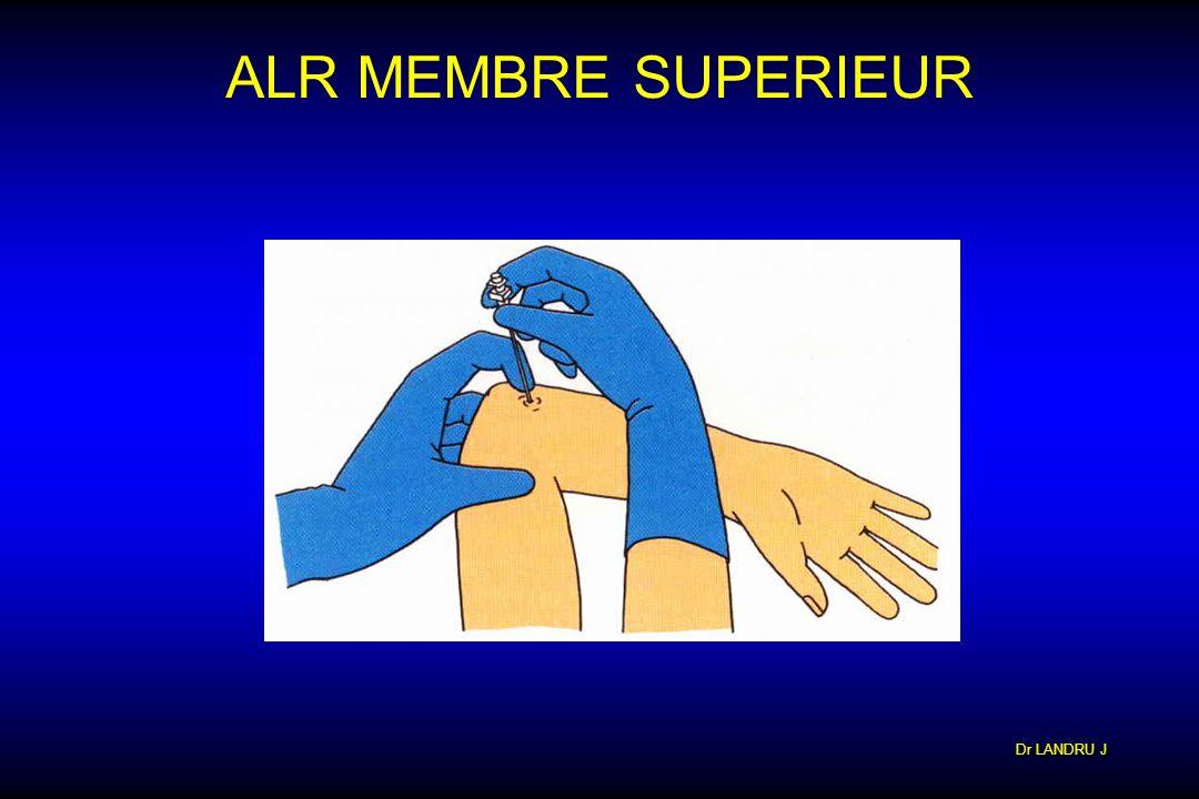 ALR MEMBRE SUPERIEUR