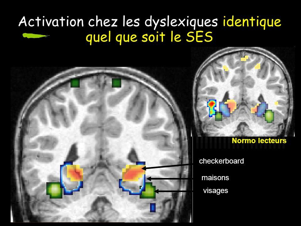 Activation chez les dyslexiques identique quel que soit le SES