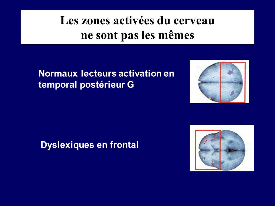 Les zones activées du cerveau ne sont pas les mêmes
