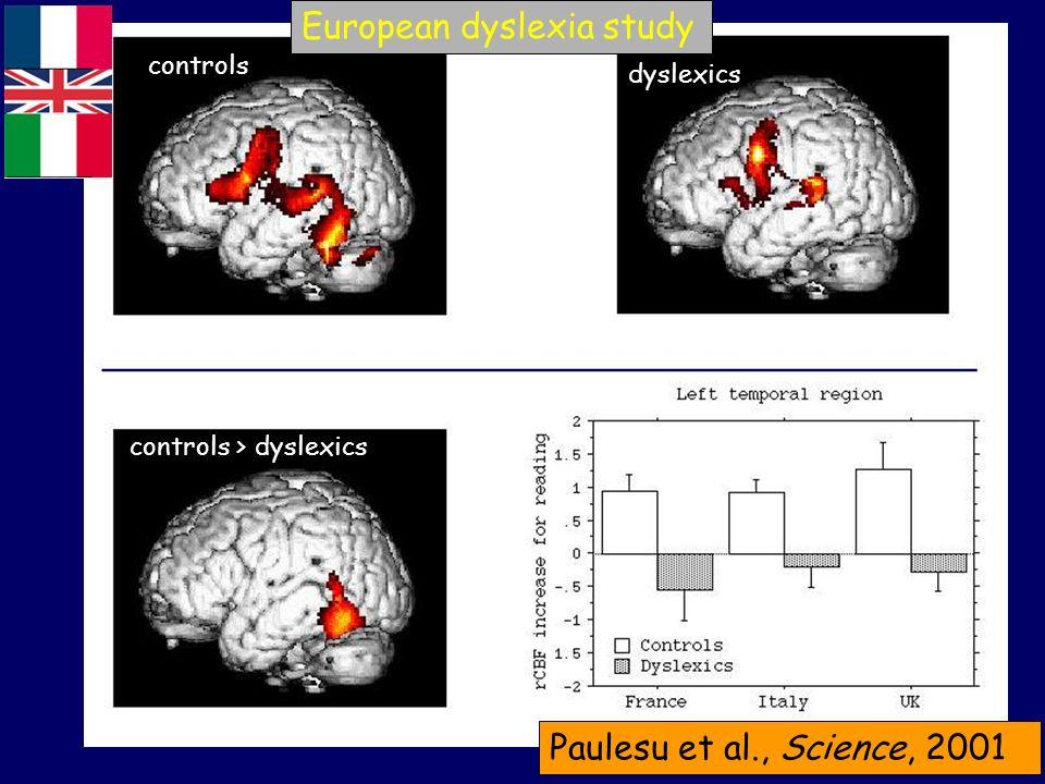European dyslexia study