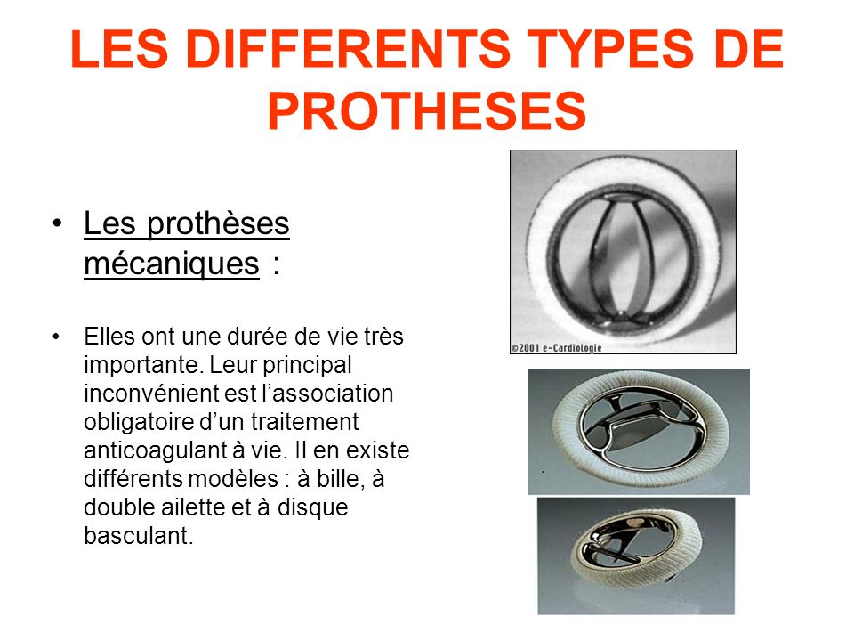 LES DIFFERENTS TYPES DE PROTHESES