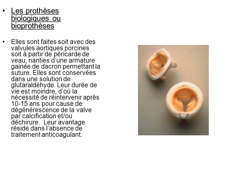 Les prothèses biologiques ou bioprothèses