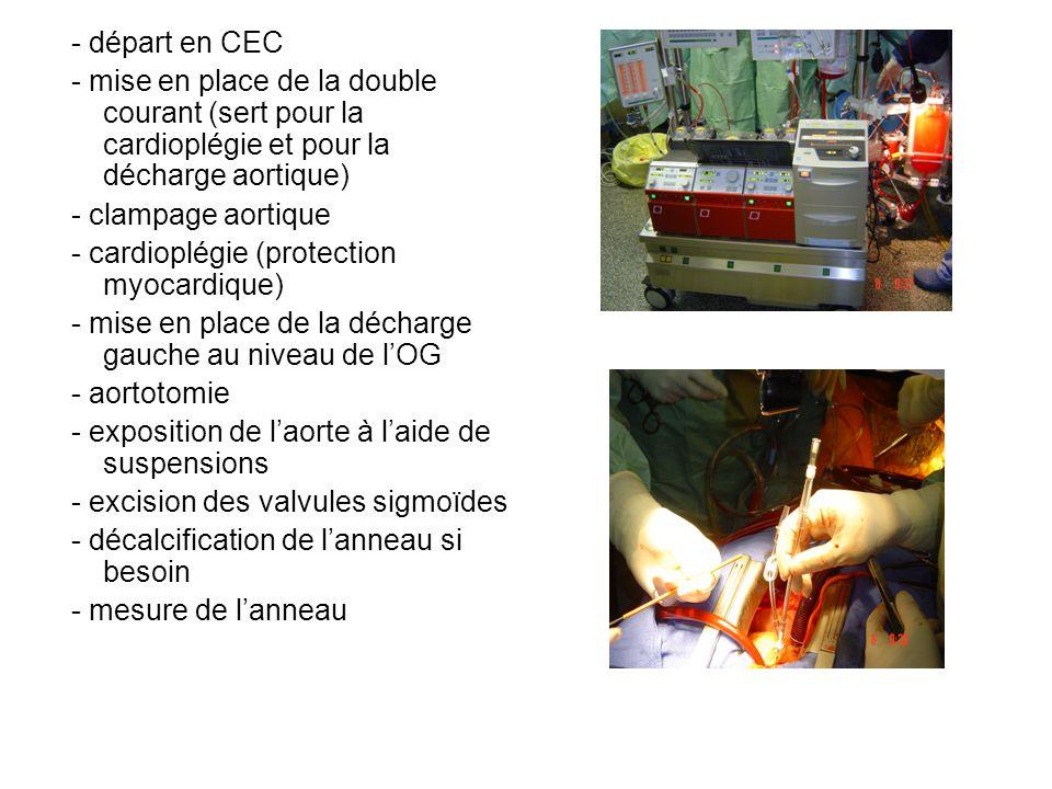- cardioplégie (protection myocardique)