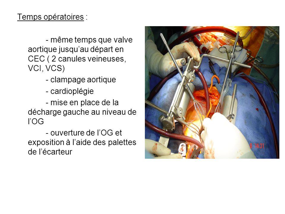 Temps opératoires : - même temps que valve aortique jusqu'au départ en CEC ( 2 canules veineuses, VCI, VCS)