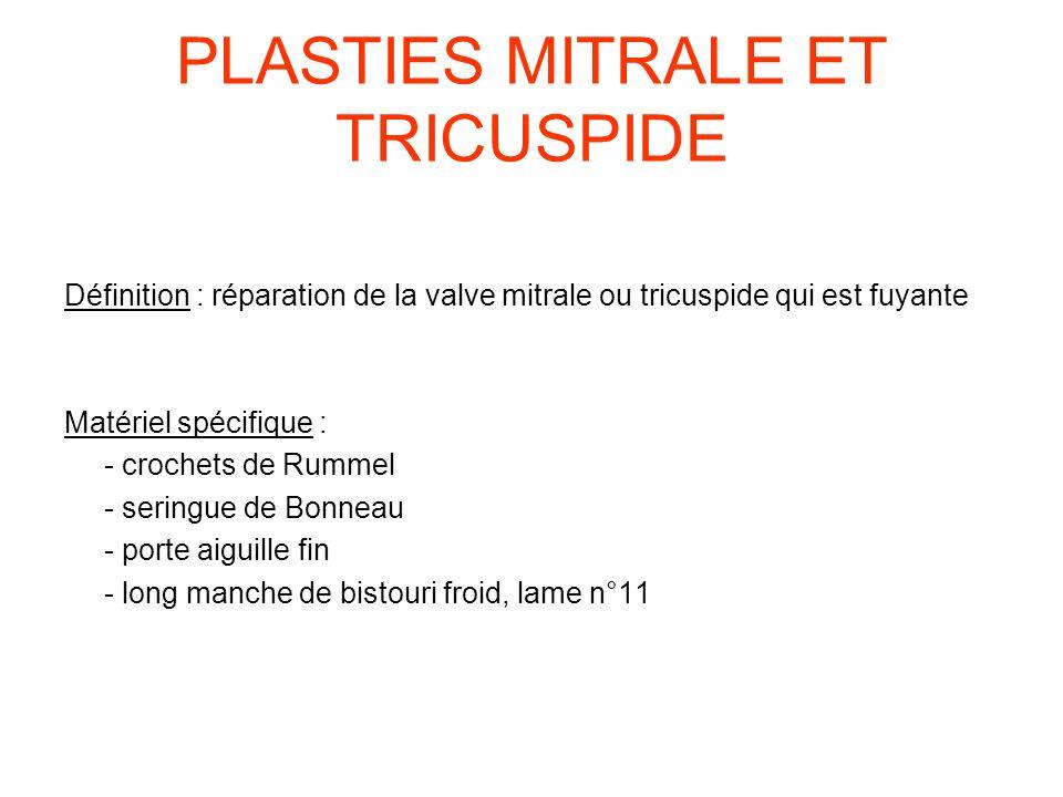 PLASTIES MITRALE ET TRICUSPIDE