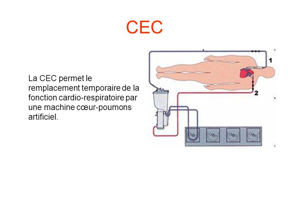 CEC La CEC permet le remplacement temporaire de la fonction cardio-respiratoire par une machine cœur-poumons artificiel.