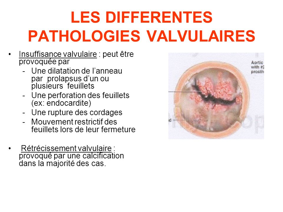 LES DIFFERENTES PATHOLOGIES VALVULAIRES