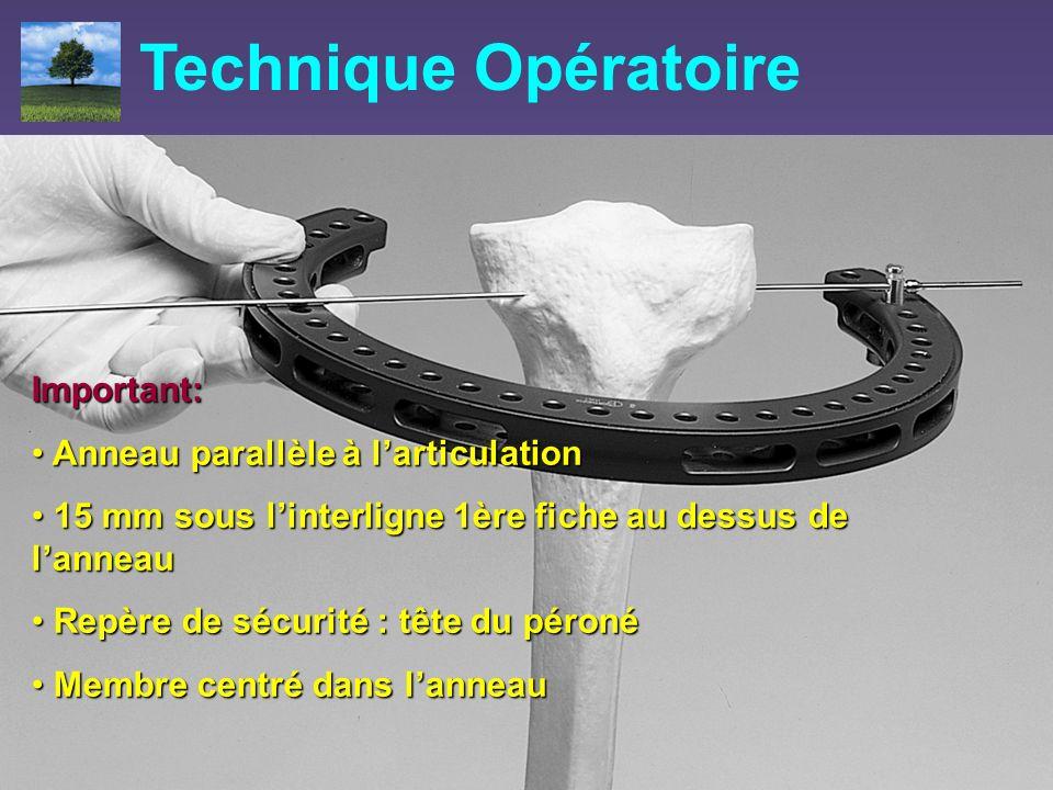 Technique Opératoire Important: Anneau parallèle à l'articulation
