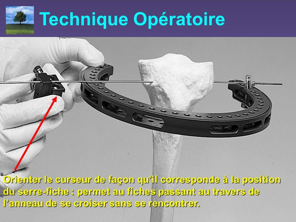 Technique Opératoire