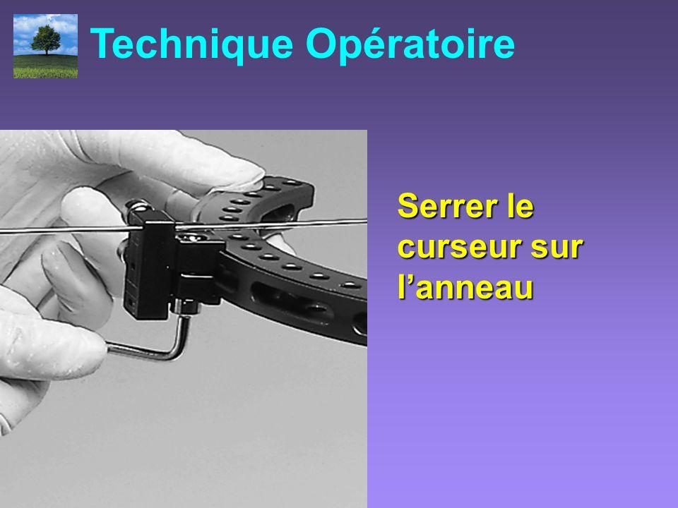 Technique Opératoire Serrer le curseur sur l'anneau