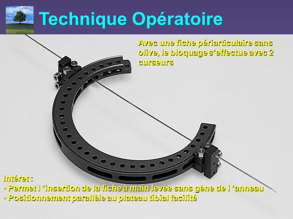 Technique Opératoire Avec une fiche périarticulaire sans olive, le bloquage s'effectue avec 2 curseurs.