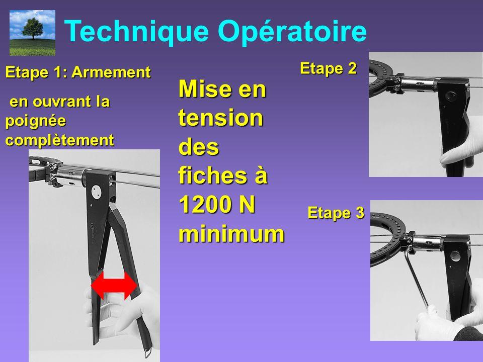Technique Opératoire Mise en tension des fiches à 1200 N minimum