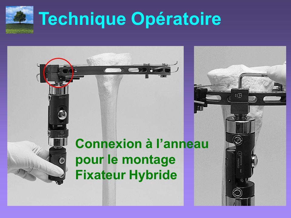 Technique Opératoire Connexion à l'anneau pour le montage Fixateur Hybride