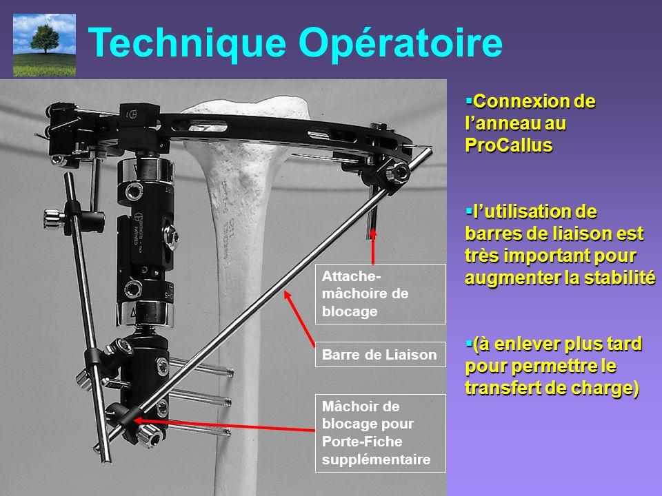 Technique Opératoire Connexion de l'anneau au ProCallus