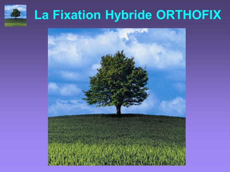 La Fixation Hybride ORTHOFIX