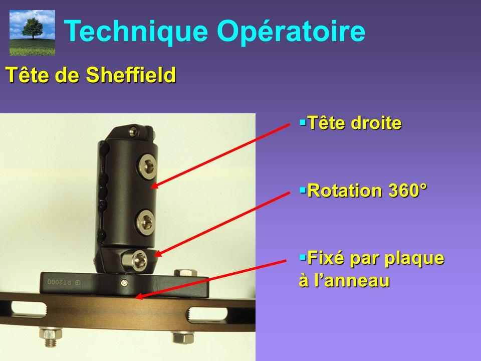 Technique Opératoire La Tête de Sheffield Tête de Sheffield