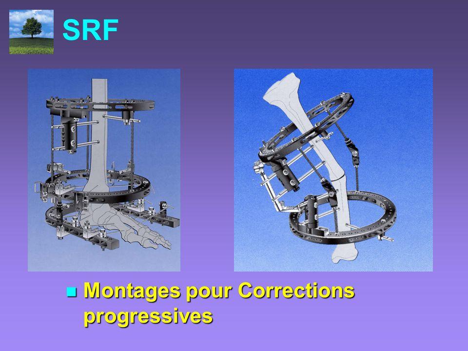 SRF Montages pour Corrections progressives