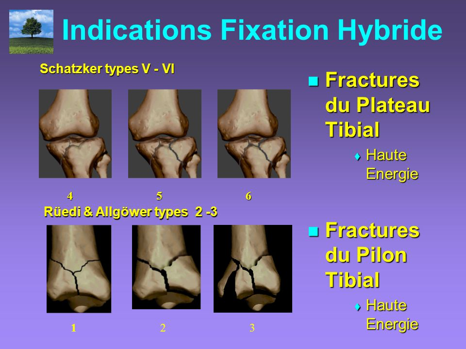 Indications Fixation Hybride