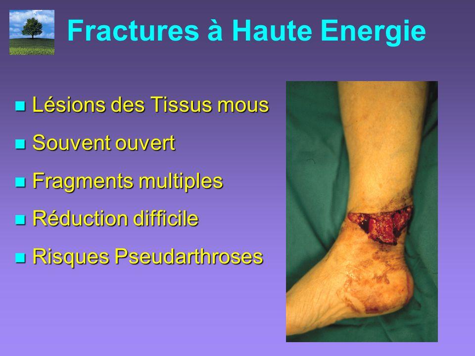 Fractures à Haute Energie