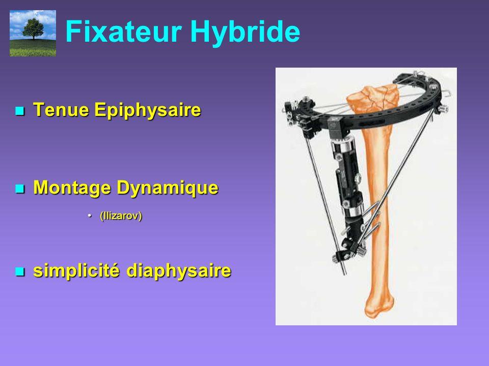 Fixateur Hybride Tenue Epiphysaire Montage Dynamique