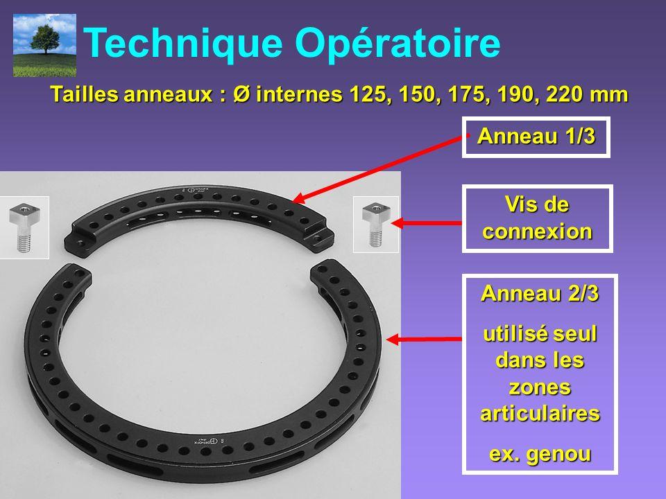 Technique Opératoire Tailles anneaux : Ø internes 125, 150, 175, 190, 220 mm. Anneau 1/3. Vis de connexion.