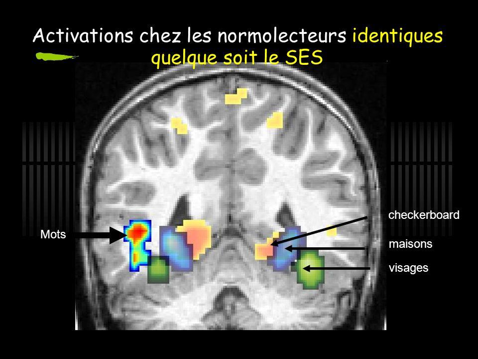 Activations chez les normolecteurs identiques quelque soit le SES