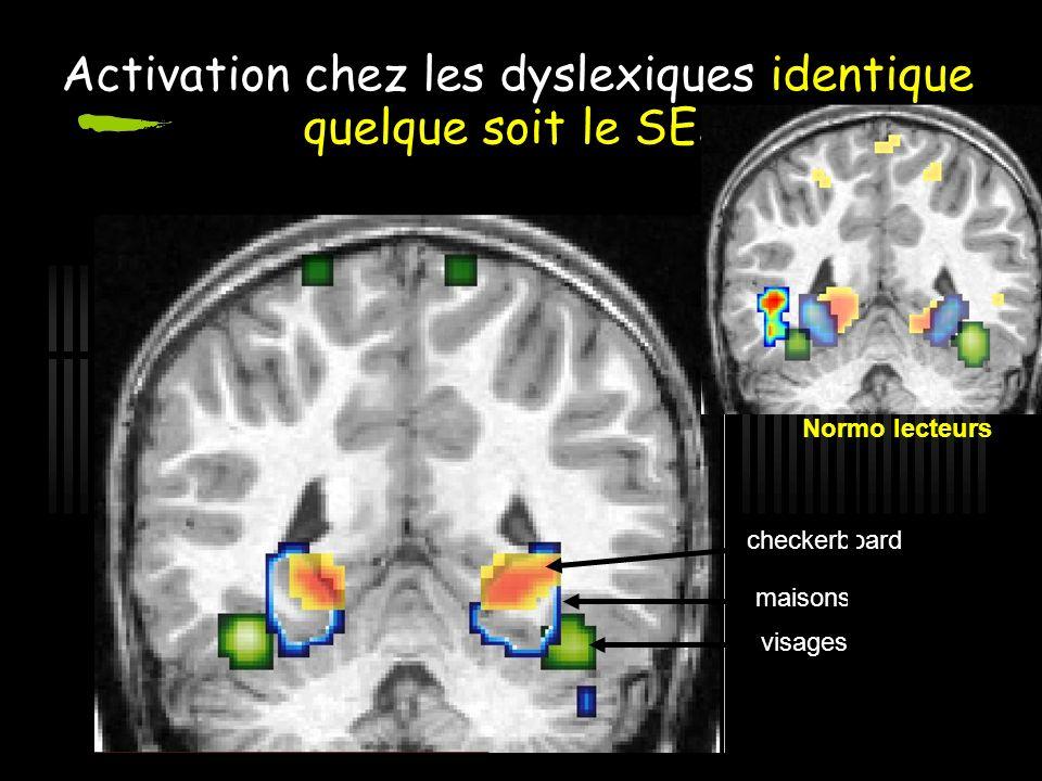 Activation chez les dyslexiques identique quelque soit le SES