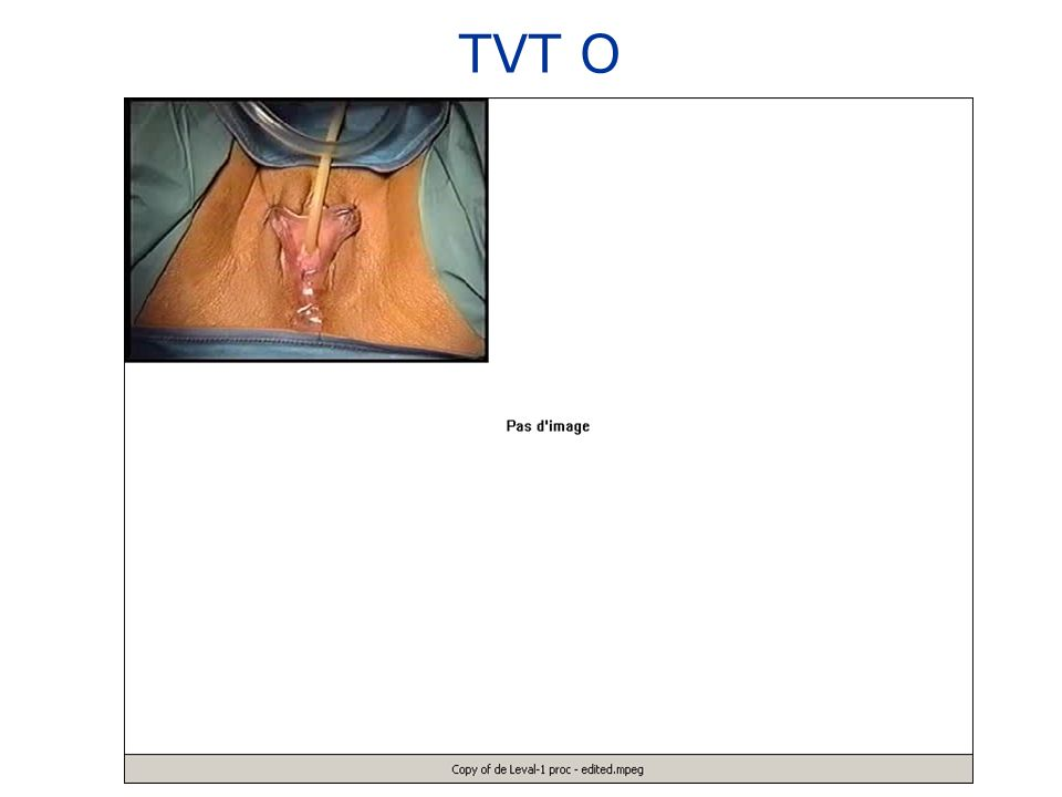 TVT O